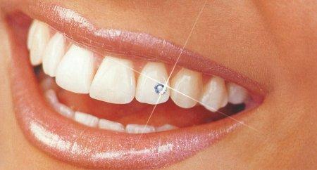 Стоматология Аванстом - помощник вашим зубам